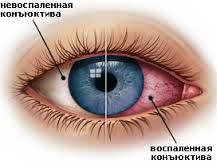 Как приобрести хорошее зрение без очков маргарет д. корбетт